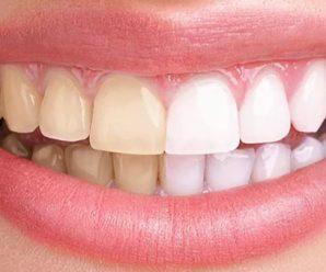 Testez gratuitement le kit de blanchiment dentaire Plastimea