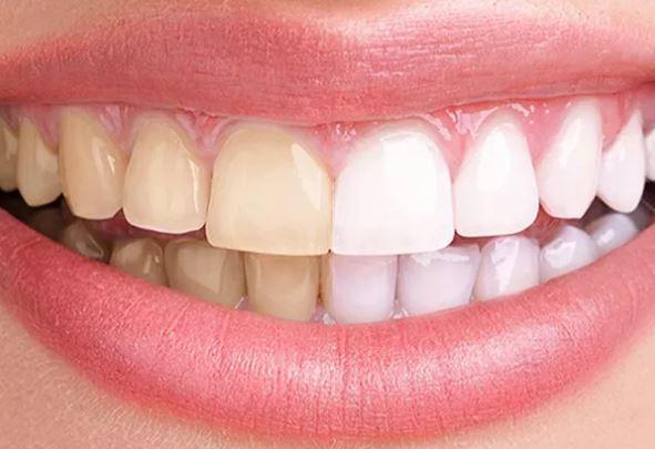 blanchiment des dents gratuit